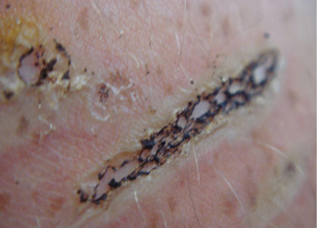 laser tattoo scar