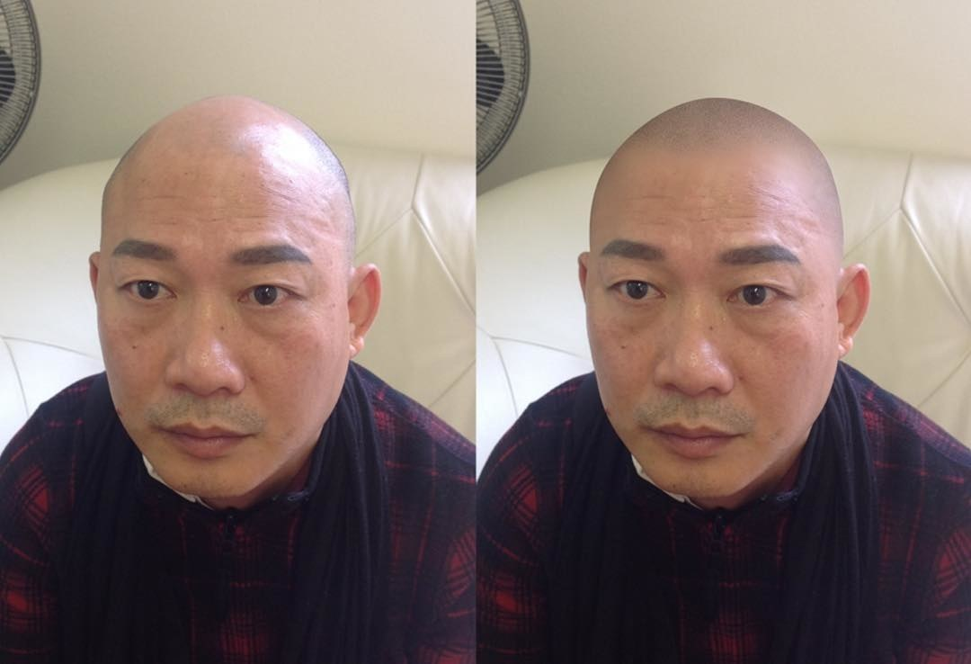 hairline tattoo before and after