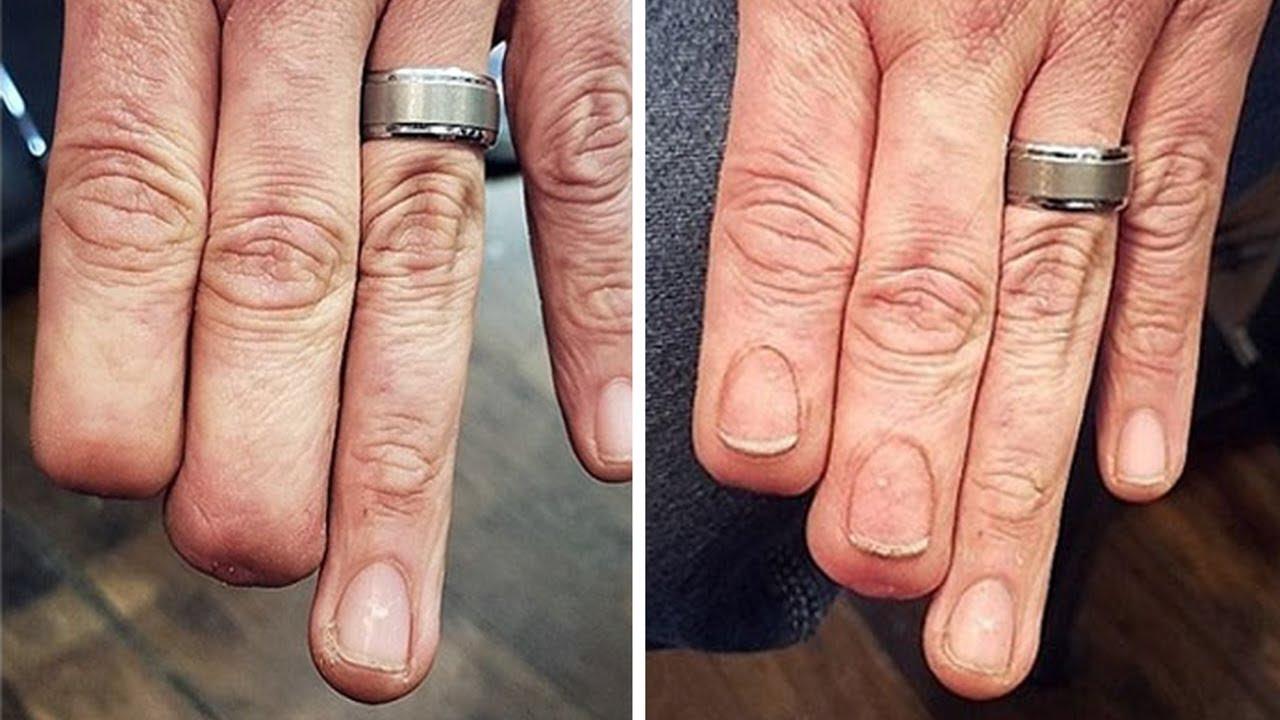 tattoo missing nails scar